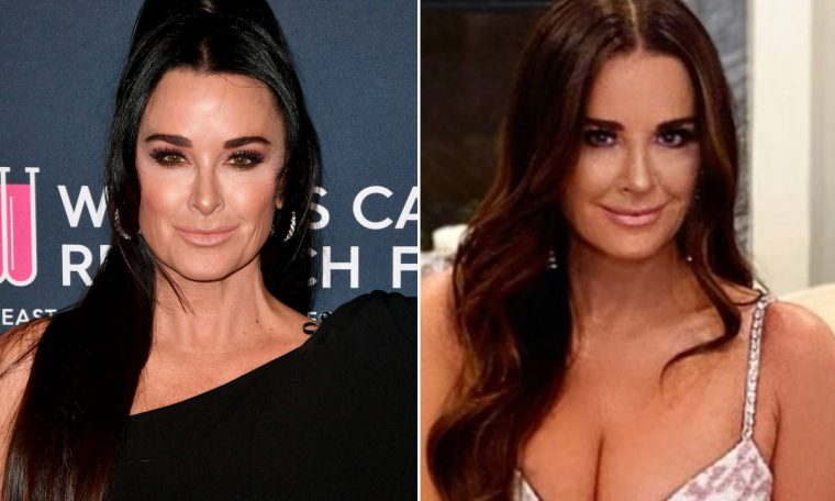 Kyle Richards revealed that he got a nose job after breaking up