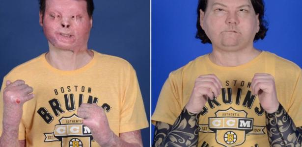 Success of first face and hand transplant in accident victim - 02/04/2021
