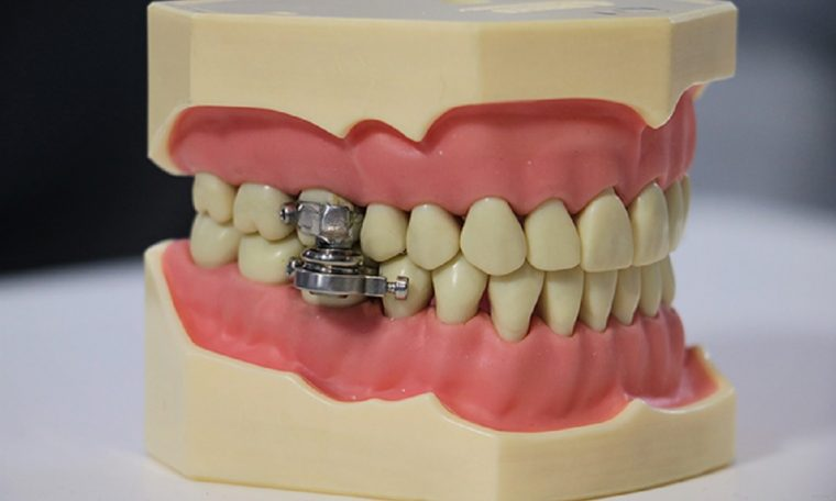 The slimming device that closes the mouth is criticized by experts