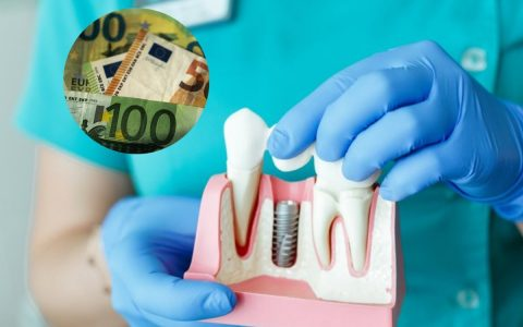 He spent a lot of money on dental implants: it was only later that he realized it was not over